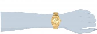 14321 wrist