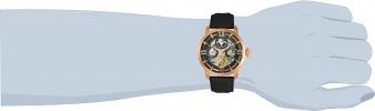 22653 wrist