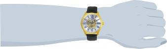 23635 wrist