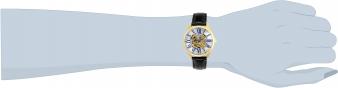 23659 wrist