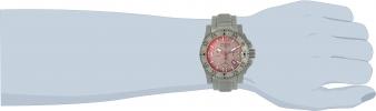 25044 wrist