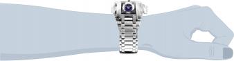 25207 wrist