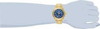 25376 wrist