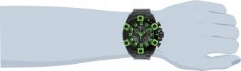 25487 wrist