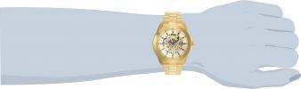25759 wrist