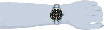 26601 wrist