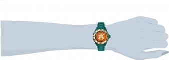27140 wrist