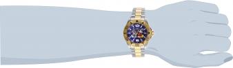 27408 wrist