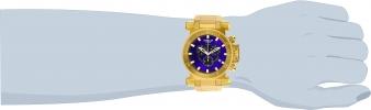 27836 wrist