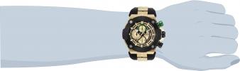 28051 wrist