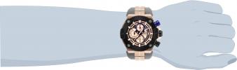 28052 wrist