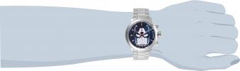 28424 wrist