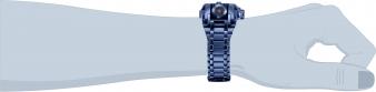 28632 wrist