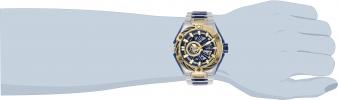 29041 wrist