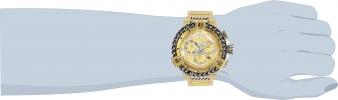 30545 wrist