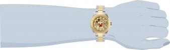 30635 wrist
