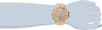 32112 wrist