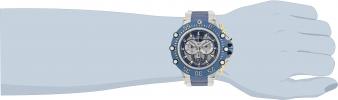 32113 wrist